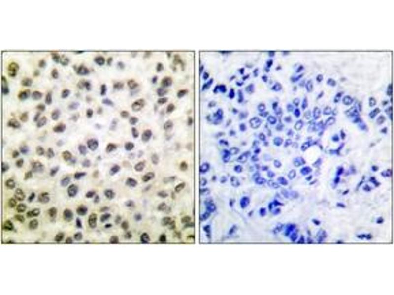 Immunohistochemistry (IHC) image for anti-Signal Transducer and Activator of Transcription 5B (STAT5B) (AA 697-746) antibody (ABIN1532264)