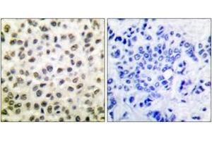 Immunohistochemistry (IHC) image for anti-STAT5B antibody (Signal Transducer and Activator of Transcription 5B) (ABIN1532264)
