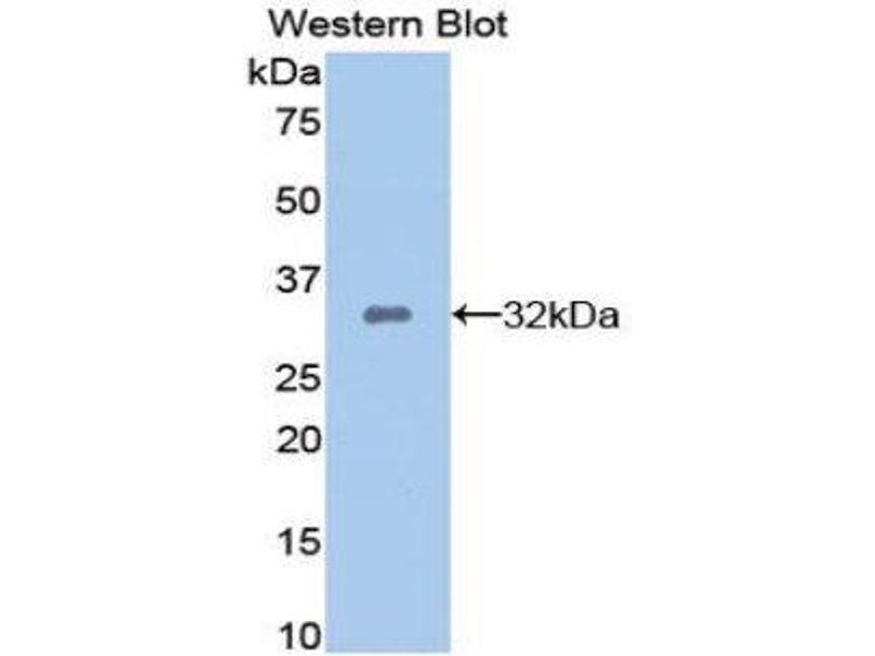 Western Blotting (WB) image for anti-Dickkopf Homolog 1 (Xenopus Laevis) (DKK1) (AA 33-266) antibody (ABIN1858644)