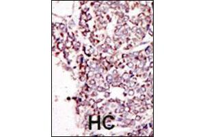 Image no. 3 for anti-TYRO3 Protein Tyrosine Kinase (TYRO3) (AA 842-873), (C-Term) antibody (ABIN392054)