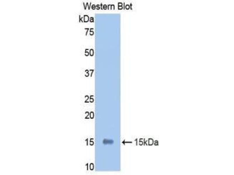 Western Blotting (WB) image for anti-Leukemia Inhibitory Factor Receptor alpha (LIFR) (AA 382-486) antibody (ABIN1859657)