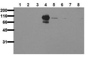 Western Blotting (WB) image for anti-PTK2B Antikörper (PTK2B Protein tyrosine Kinase 2 beta) (pTyr402) (ABIN126880)