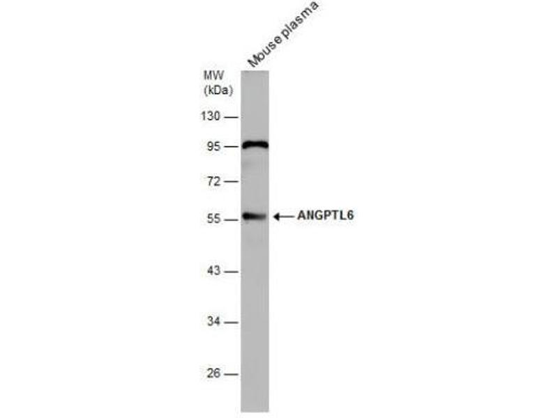Western Blotting (WB) image for anti-Angiopoietin-Like 6 (ANGPTL6) (Center) antibody (ABIN4280628)