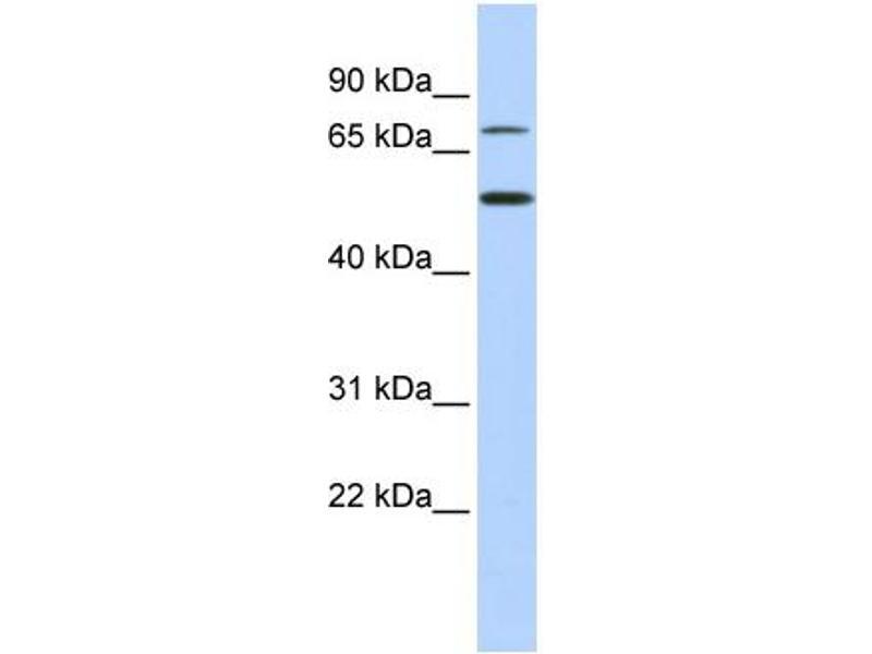 Western Blotting (WB) image for anti-T-Box 3 (TBX3) (Middle Region) antibody (ABIN2777924)