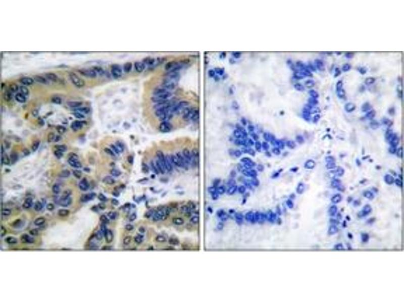 Immunohistochemistry (IHC) image for anti-Caspase 7 antibody (Caspase 7, Apoptosis-Related Cysteine Peptidase) (Cleaved-Asp198) (ABIN1536085)