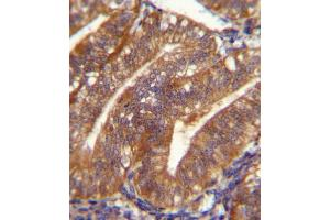 Image no. 2 for anti-Periostin, Osteoblast Specific Factor (POSTN) (AA 687-716), (C-Term) antibody (ABIN5537395)