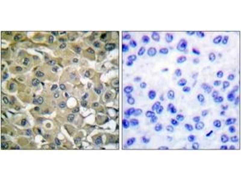 Immunohistochemistry (IHC) image for anti-Keratin 18 (KRT18) (AA 1-50) antibody (ABIN1532201)