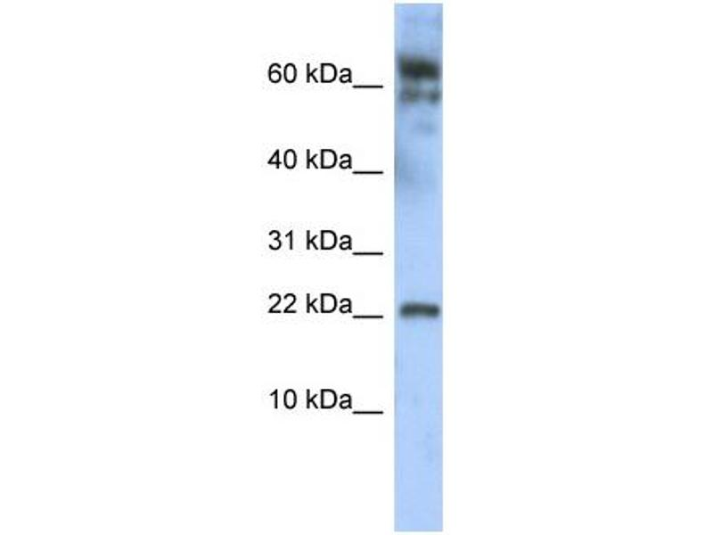 Western Blotting (WB) image for anti-Leucine Zipper, Down-Regulated in Cancer 1 (LDOC1) (N-Term) antibody (ABIN405190)