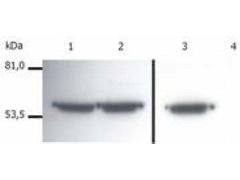 Western Blotting (WB) image for anti-Vimentin antibody (VIM) (ABIN268950)