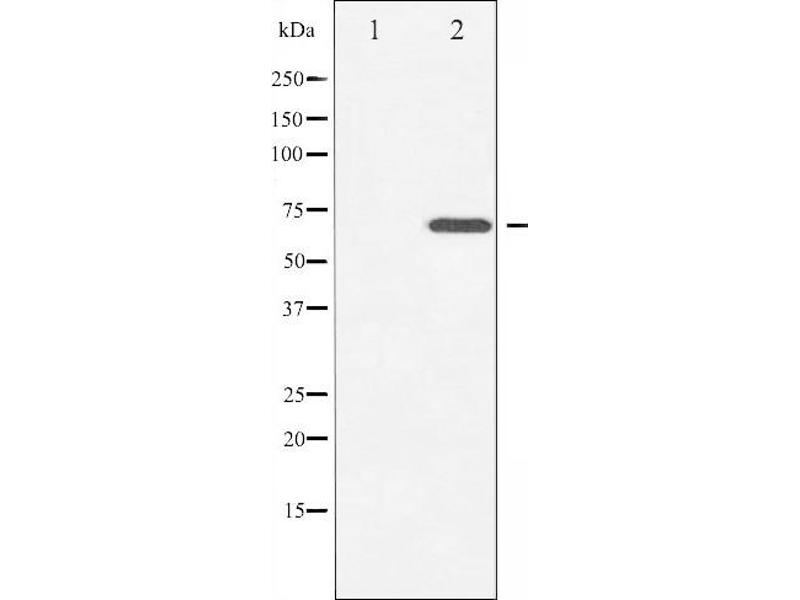 Western Blotting (WB) image for anti-zeta-Chain (TCR) Associated Protein Kinase 70kDa (ZAP70) (pTyr493) antibody (ABIN6256749)