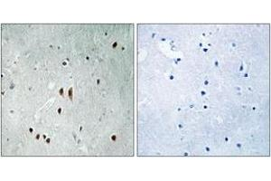 Image no. 1 for anti-CCR4-NOT Transcription Complex, Subunit 2 (CNOT2) (AA 67-116), (pSer101) antibody (ABIN1532161)