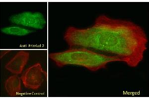 Image no. 1 for anti-Frizzled Family Receptor 2 (FZD2) (Internal Region) antibody (ABIN302136)