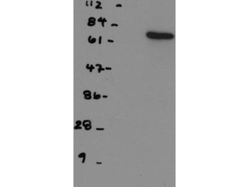 Western Blotting (WB) image for anti-NDC80 antibody (NDC80 Kinetochore Complex Component Homolog (S. Cerevisiae)) (ABIN151804)