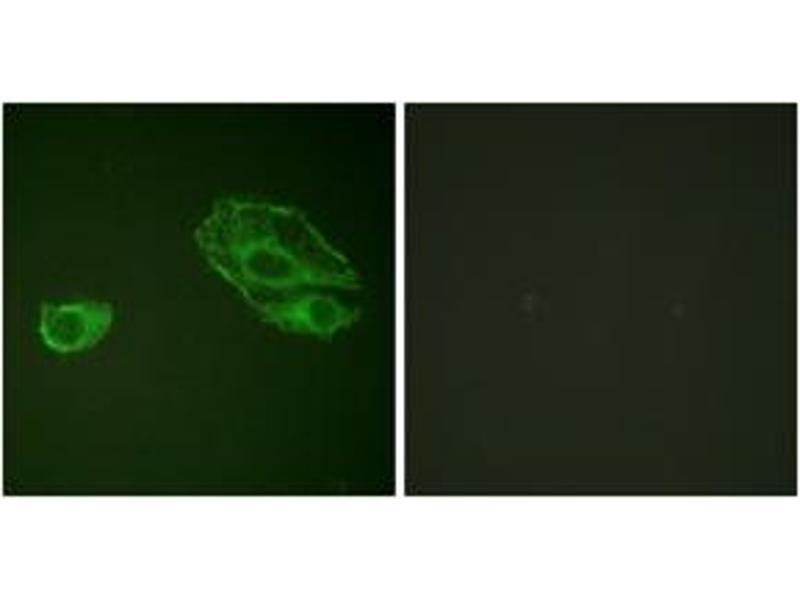Immunofluorescence (IF) image for anti-ERBB3 Antikörper (V-Erb-B2 Erythroblastic Leukemia Viral Oncogene Homolog 3 (Avian)) (ABIN1532626)
