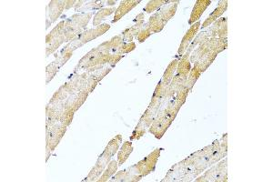 Image no. 1 for anti-Calcitonin-Related Polypeptide beta (CALCB) antibody (ABIN6571564)