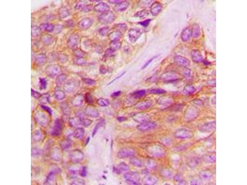 Immunohistochemistry (IHC) image for anti-JAK1 antibody (Janus Kinase 1) (C-Term) (ABIN2704931)