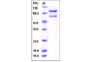 Image no. 1 for Calcium/calmodulin-Dependent Protein Kinase II beta (CAMK2B) (AA 1-503) (Active) protein (GST tag,His tag) (ABIN2004740)