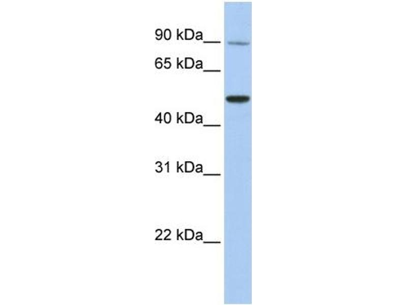 Western Blotting (WB) image for anti-Transient Receptor Potential Cation Channel, Subfamily V, Member 5 (TRPV5) (N-Term) antibody (ABIN2783755)