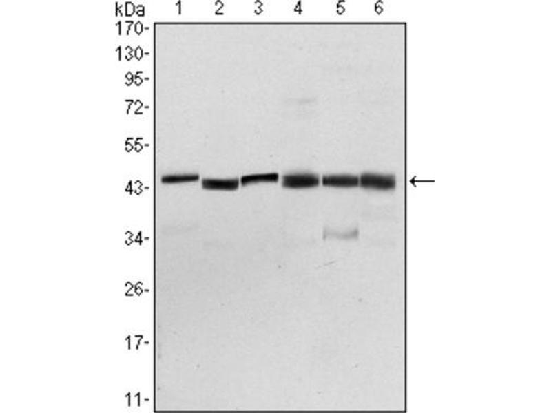Western Blotting (WB) image for anti-3-phosphoinositide Dependent Protein Kinase-1 (PDPK1) antibody (ABIN1844865)