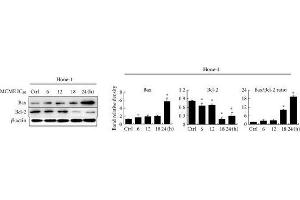 Image no. 3 for anti-B-Cell CLL/lymphoma 2 (BCL2) (N-Term) antibody (ABIN2857047)
