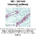 anti-SLC4A2 antibody (Solute Carrier Family 4, Anion Exchanger, Member 2 (erythrocyte Membrane Protein Band 3-Like 1)) (Internal Region)