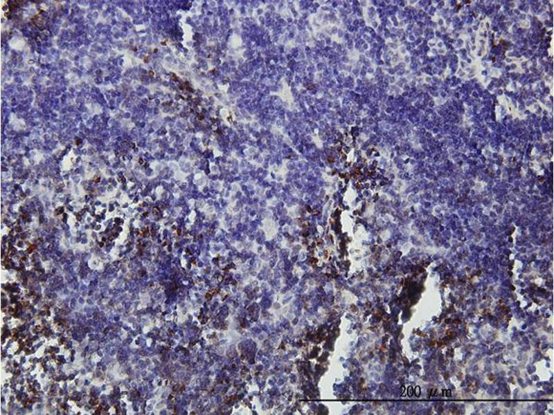 Immunostaining (ISt) image for anti-Zinc Finger Protein 163 (ZNF163) (AA 1-91), (partial) antibody (ABIN561035)