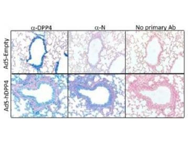 Immunohistochemistry (IHC) image for anti-Dipeptidyl-Peptidase 4 (DPP4) antibody (ABIN4306068)