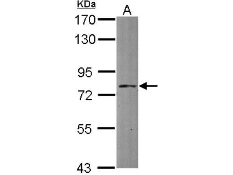 Western Blotting (WB) image for anti-Adaptor Protein, phosphotyrosine Interaction, PH Domain and Leucine Zipper Containing 1 (APPL1) (N-Term) antibody (ABIN4281279)