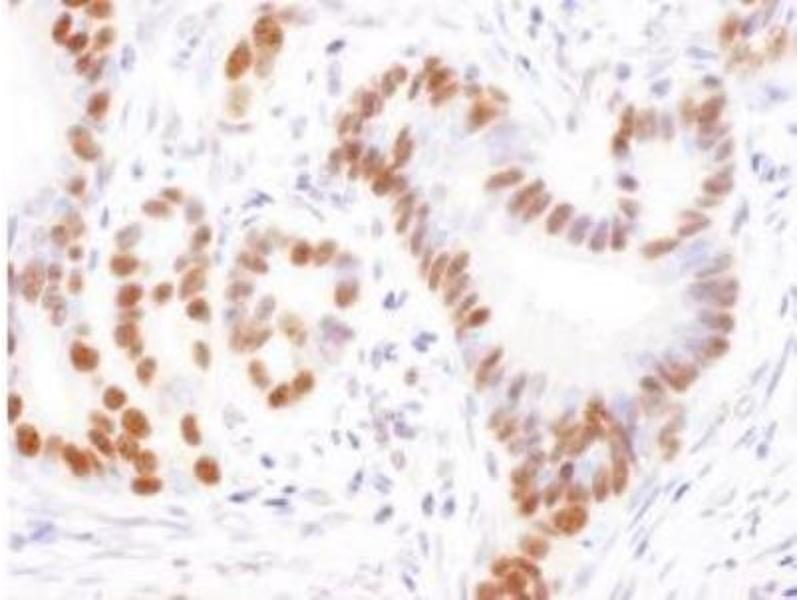Immunohistochemistry (Paraffin-embedded Sections) (IHC (p)) image for anti-Ubiquitin Specific Peptidase 7 (Herpes Virus-Associated) (USP7) (AA 1-50) antibody (ABIN151954)
