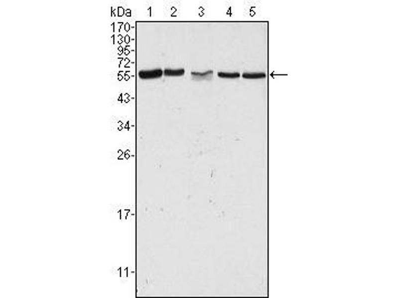 Western Blotting (WB) image for anti-P21-Activated Kinase 2 (PAK2) antibody (ABIN932933)
