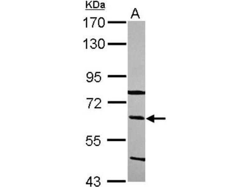 Western Blotting (WB) image for anti-C8B Antikörper (Complement Component 8, beta Polypeptide) (C-Term) (ABIN4286609)