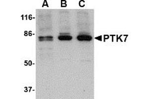 image for anti-PTK7 Protein tyrosine Kinase 7 (PTK7) (N-Term) antibody (ABIN203728)