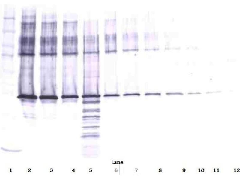 Western Blotting (WB) image for anti-serpin Peptidase Inhibitor, Clade B (Ovalbumin), Member 5 (SERPINB5) antibody (ABIN487960)