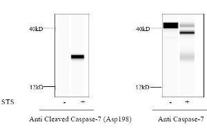 Image no. 3 for Caspase 7, Apoptosis-Related Cysteine Peptidase (CASP7) ELISA Kit (ABIN4889767)