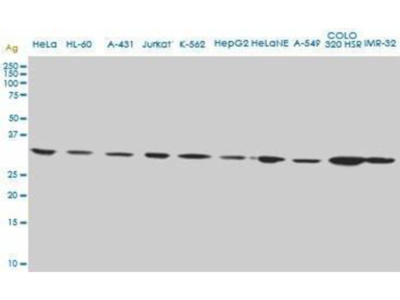 Immunohistochemistry (IHC) image for anti-CD5 Molecule-Like (CD5L) (AA 41-140) antibody (ABIN394950)