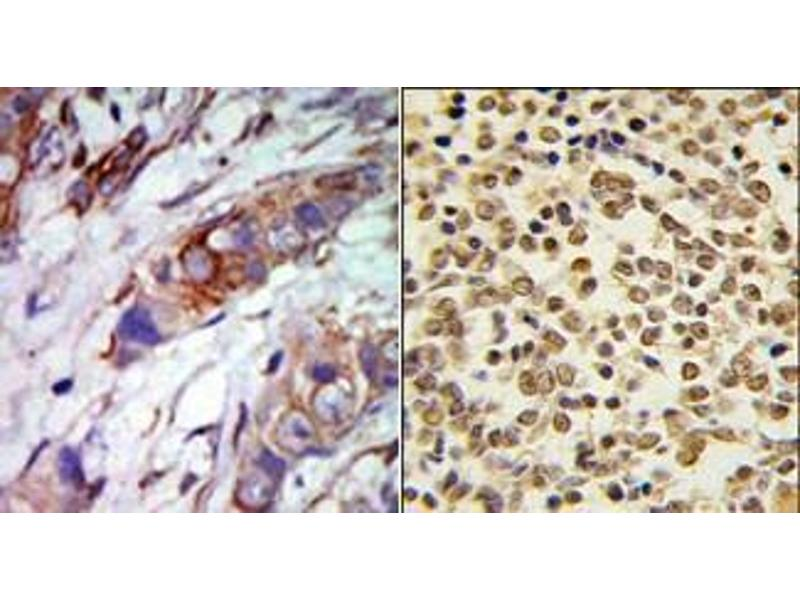 Immunohistochemistry (Paraffin-embedded Sections) (IHC (p)) image for anti-MAPK7 Antikörper (Mitogen-Activated Protein Kinase 7) (C-Term) (ABIN359634)
