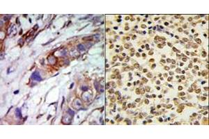 Immunohistochemistry (Paraffin-embedded Sections) (IHC (p)) image for anti-MAPK7 antibody (Mitogen-Activated Protein Kinase 7) (C-Term) (ABIN359634)
