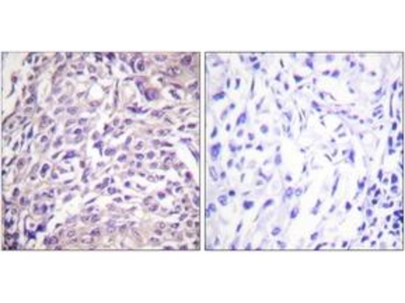 Immunohistochemistry (IHC) image for anti-Forkhead Box O1 (FOXO1) (AA 295-344) antibody (ABIN1532340)