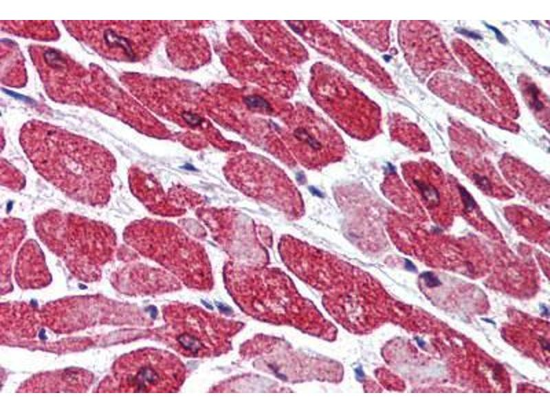Immunohistochemistry (Paraffin-embedded Sections) (IHC (p)) image for anti-Lysine (K)-Specific Demethylase 1A (KDM1A) (AA 100-150) antibody (ABIN290327)