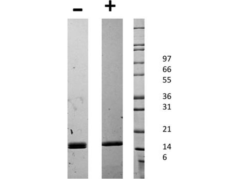 Image no. 2 for CD40 Ligand (CD40LG) protein (ABIN6699587)