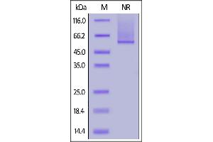 Image no. 2 for Glypican 2 (GPC2) (AA 24-554) (Active) protein (His tag) (ABIN7013370)