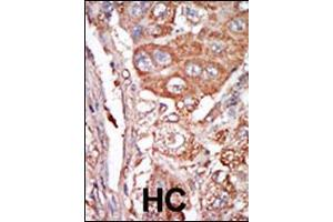 Immunohistochemistry (IHC) image for anti-FGF4 antibody (Fibroblast Growth Factor 4) (C-Term) (ABIN2436796)