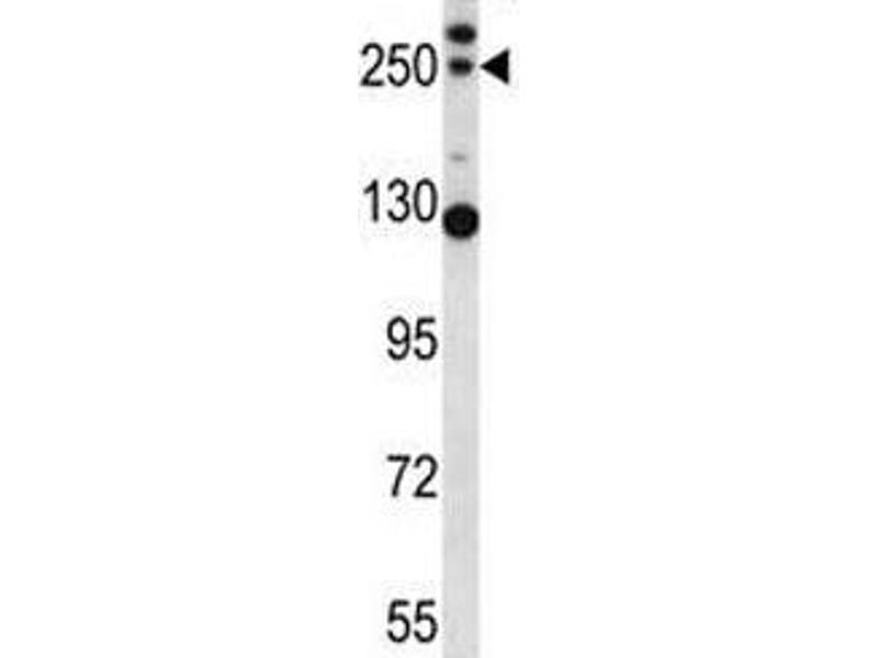 Western Blotting (WB) image for anti-Complement Component C4b (C4b) (AA 655-684) antibody (ABIN3030240)
