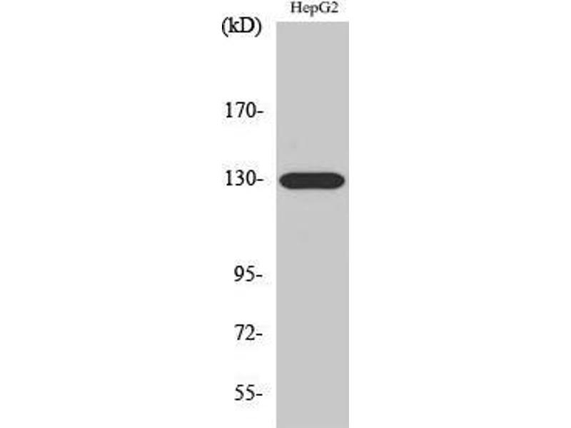 Western Blotting (WB) image for anti-EPH Receptor A5 antibody (EPHA5) (Internal Region) (ABIN3184504)