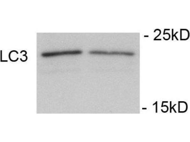 Western Blotting (WB) image for anti-Microtubule-Associated Protein 1 Light Chain 3 alpha (MAP1LC3A) (AA 1-30), (N-Term), (pSer12) antibody (ABIN1449623)