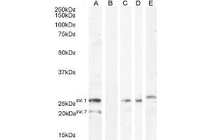 Image no. 3 for anti-V-Set Domain Containing T Cell Activation Inhibitor 1 (VTCN1) (Internal Region) antibody (ABIN334524)