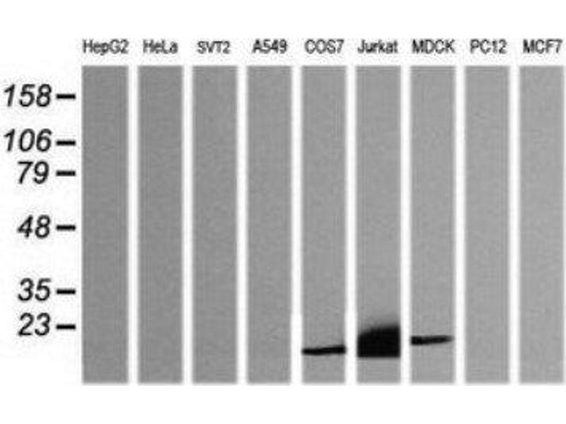 Western Blotting (WB) image for anti-CD3e Molecule, epsilon (CD3-TCR Complex) (CD3E) antibody (ABIN4291564)