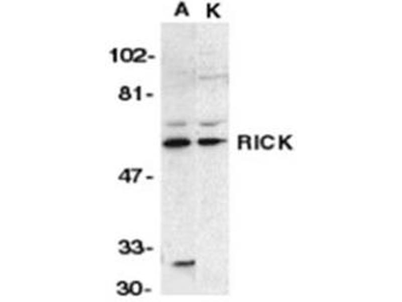 image for anti-RIPK2 antibody (Receptor-Interacting Serine-threonine Kinase 2) (N-Term) (ABIN318972)
