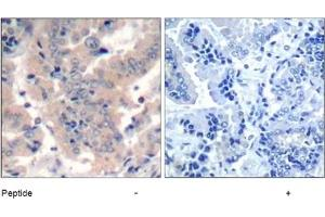 image for anti-PI3 Kinase P85 alpha (pTyr199), (pTyr464), (pTyr467) antibody (ABIN401566)