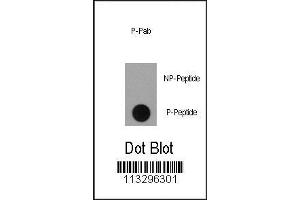 Dot Blot (DB) image for anti-Ribosomal Protein S6 Kinase, 90kDa, Polypeptide 1 (RPS6KA1) (pSer363) antibody (ABIN389846)